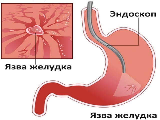 Что можно есть когда понос и болит живот. Почему болит желудок и сильный понос, что делать